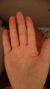ブルーベースの手